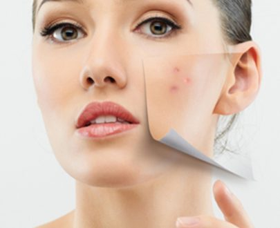 Acne Treatment / Open Pores