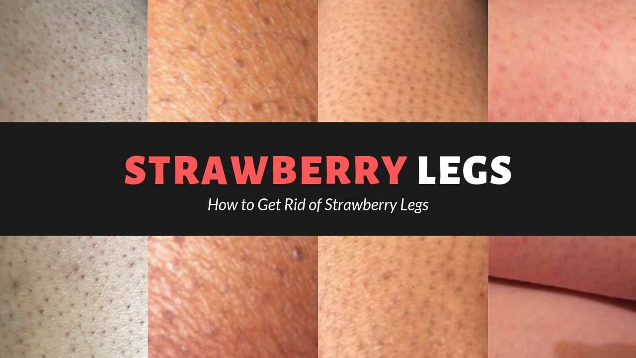 Strawberry Legs: How To Prevent & Treat Them?